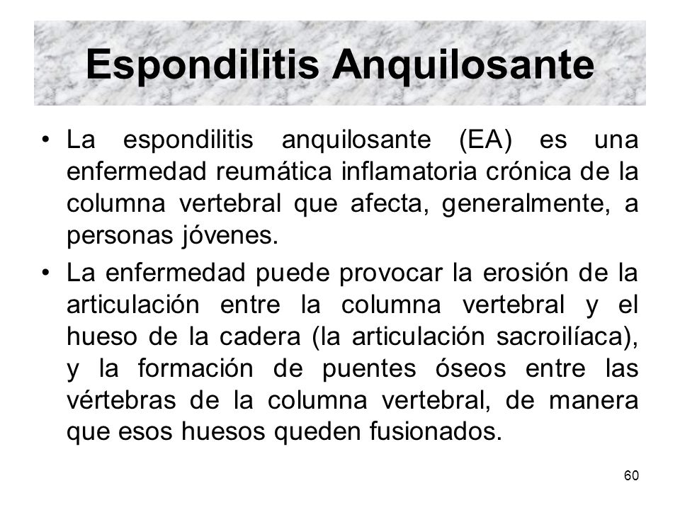 60 Espondilitis Anquilosante La espondilitis anquilosante (EA) es una enfermedad reumática inflamatoria crónica de la columna vertebral que afecta, ge