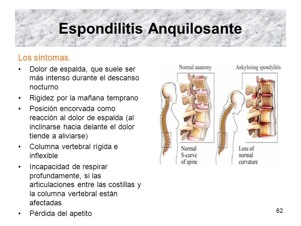 62 Espondilitis Anquilosante Los síntomas. Dolor de espalda, que suele ser más intenso durante el descanso nocturno Rigidez por la mañana temprano Pos