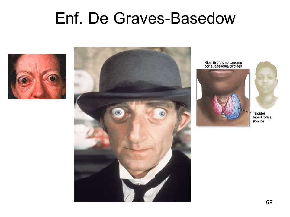 68 Enf. De Graves-Basedow