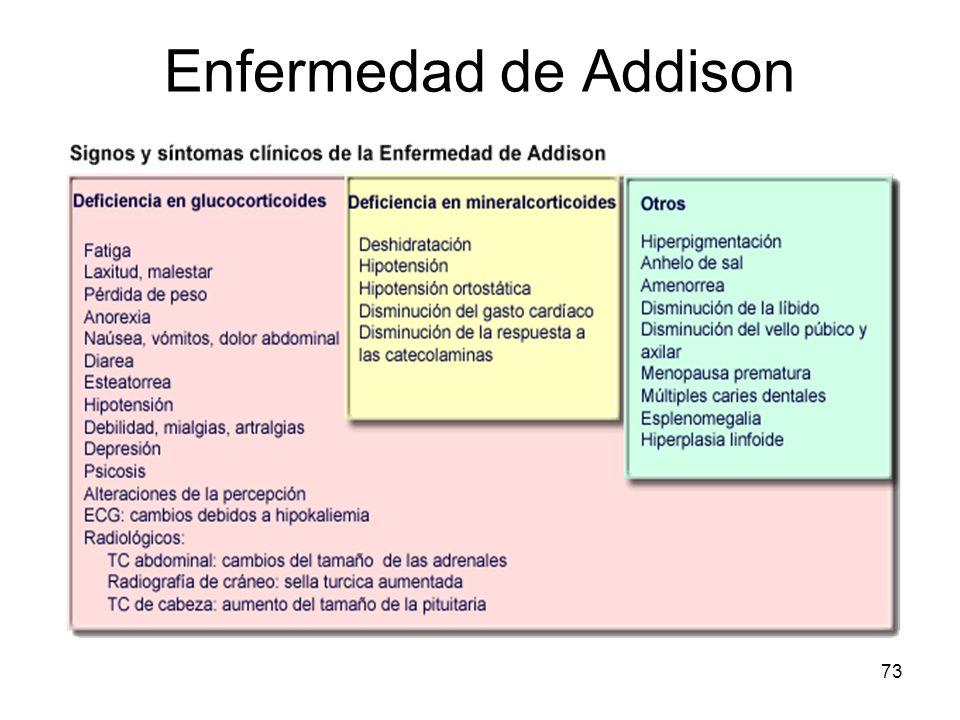 73 Enfermedad de Addison