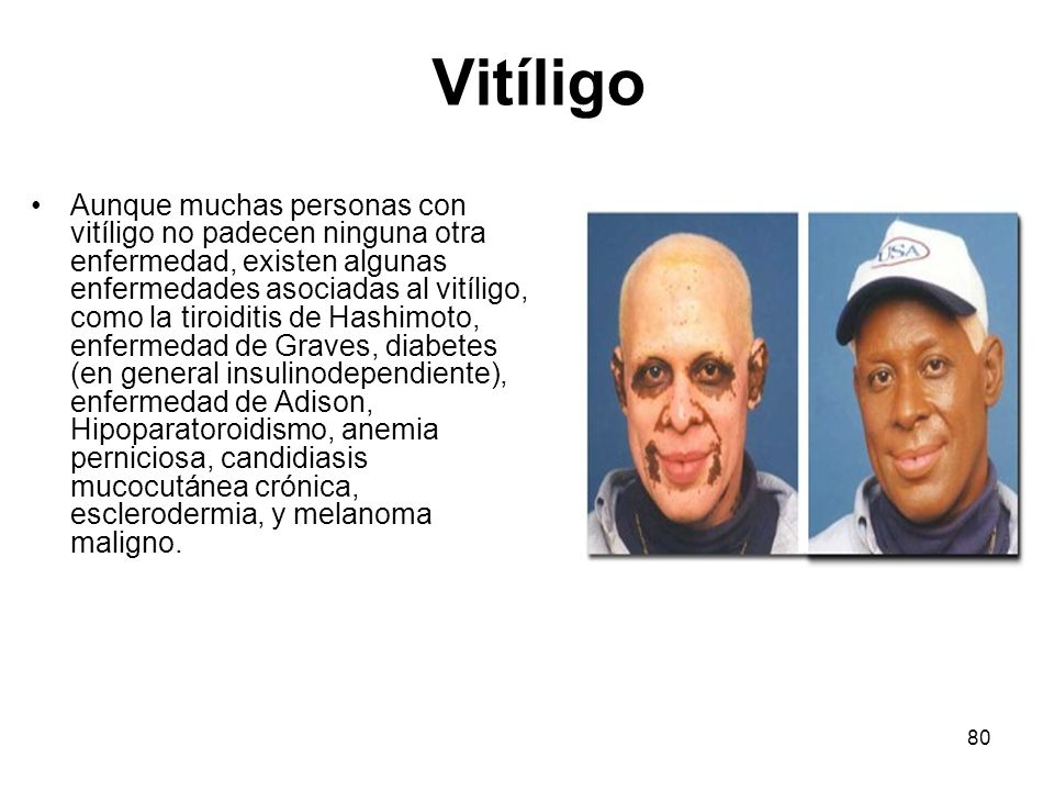 80 Vitíligo Aunque muchas personas con vitíligo no padecen ninguna otra enfermedad, existen algunas enfermedades asociadas al vitíligo, como la tiroid