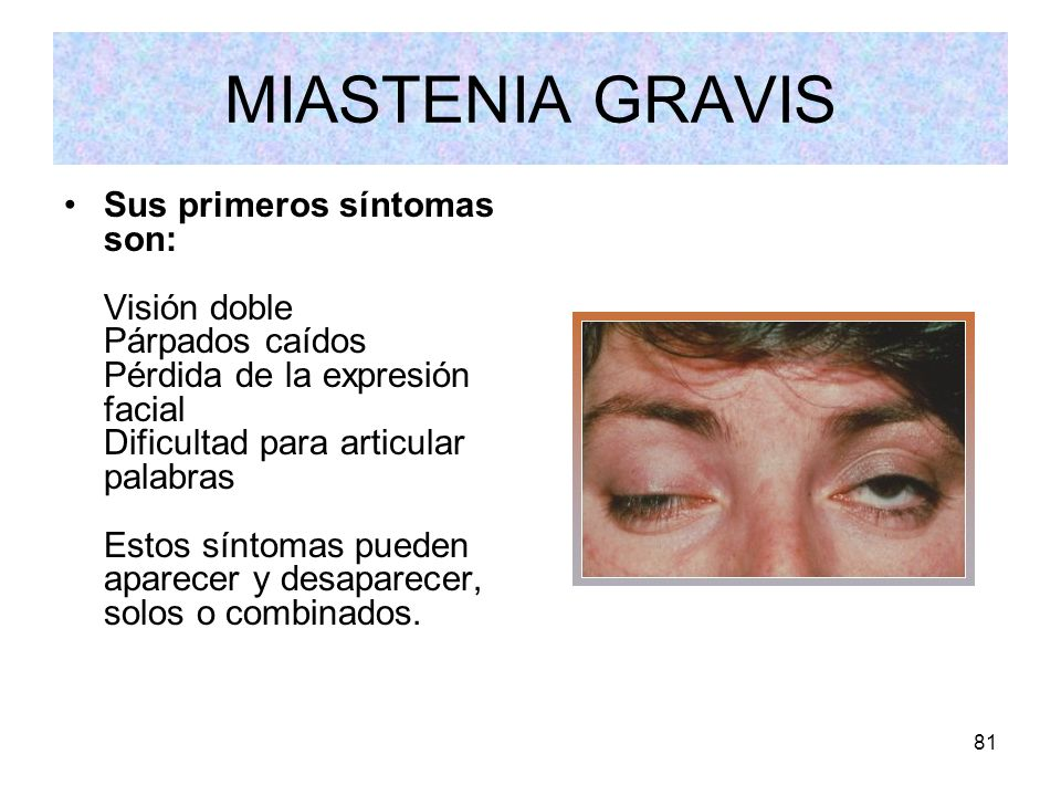 81 MIASTENIA GRAVIS Sus primeros síntomas son: Visión doble Párpados caídos Pérdida de la expresión facial Dificultad para articular palabras Estos sí