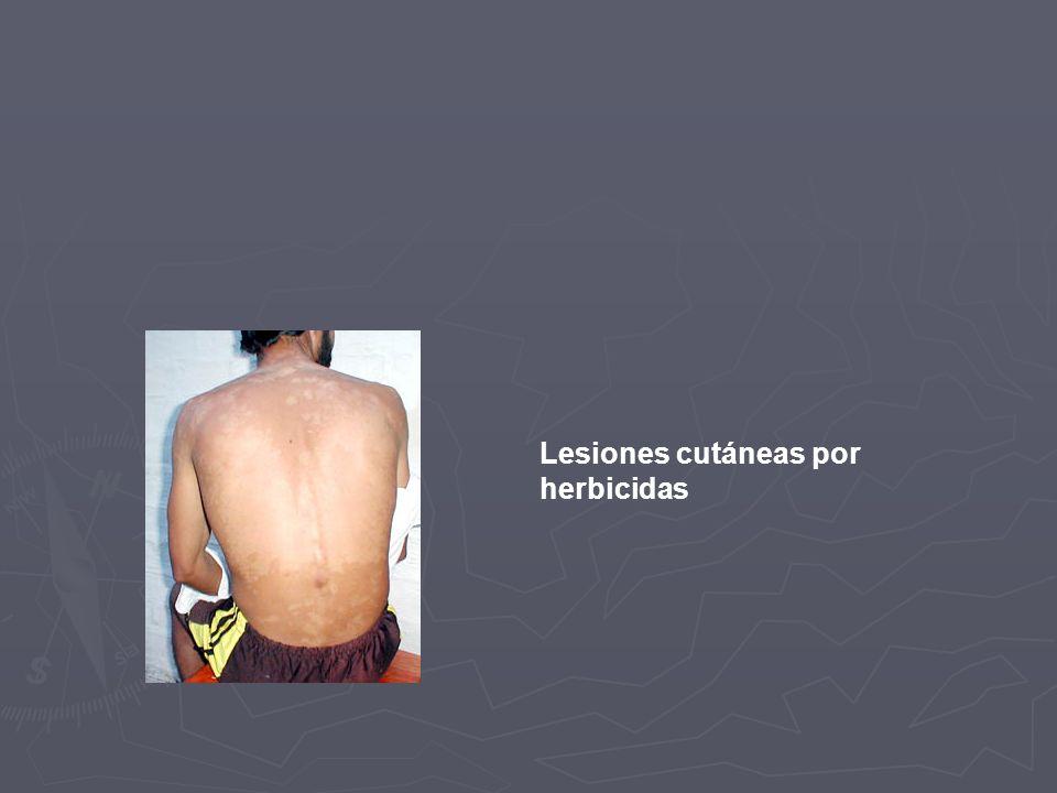 Lesiones cutáneas por herbicidas