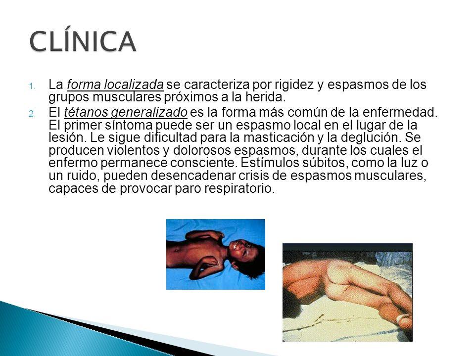 1. La forma localizada se caracteriza por rigidez y espasmos de los grupos musculares próximos a la herida. 2. El tétanos generalizado es la forma más