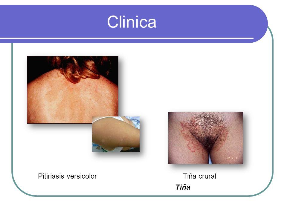 Clinica Pitiriasis versicolor Tiña crural Tiña