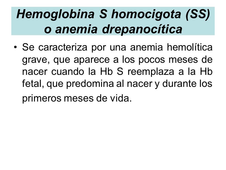 Hemoglobina S homocigota (SS) o anemia drepanocítica Se caracteriza por una anemia hemolítica grave, que aparece a los pocos meses de nacer cuando la