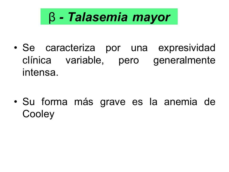 β - Talasemia mayor Se caracteriza por una expresividad clínica variable, pero generalmente intensa. Su forma más grave es la anemia de Cooley