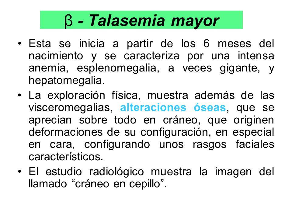 β - Talasemia mayor Esta se inicia a partir de los 6 meses del nacimiento y se caracteriza por una intensa anemia, esplenomegalia, a veces gigante, y