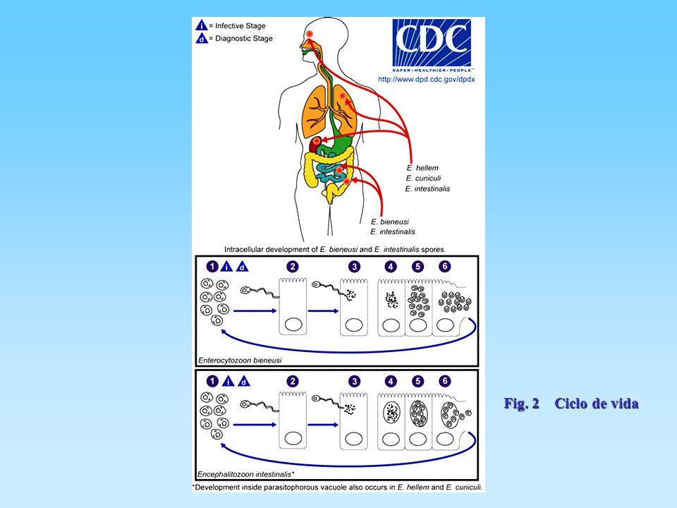 Infecciones sistémicas Infecciones por Encephalitozoon cuniculi, E.