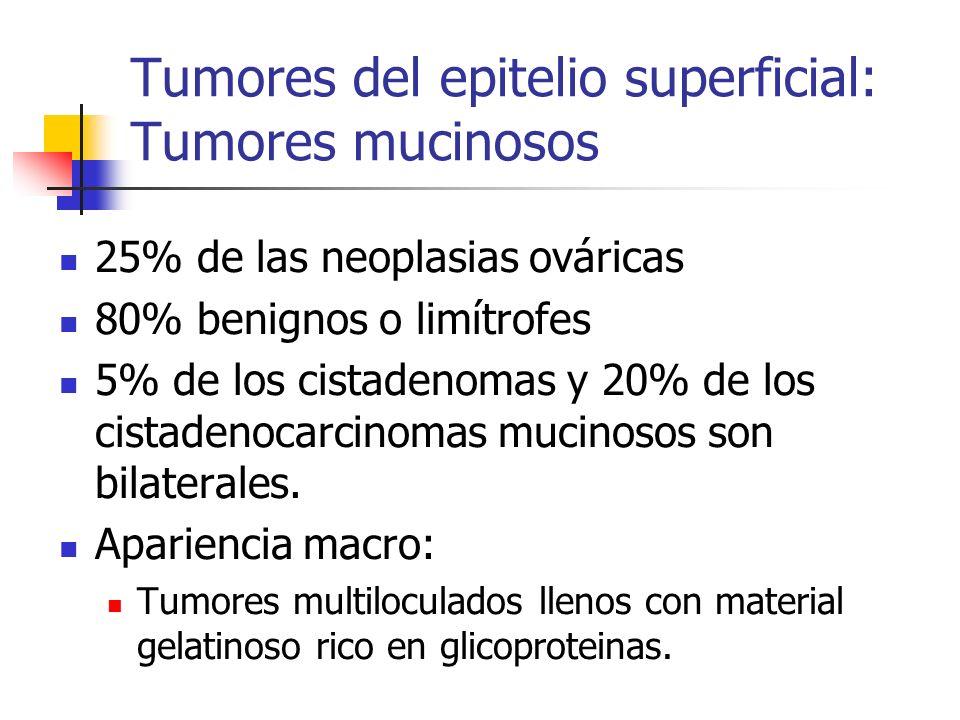 Tumores del epitelio superficial: Tumores mucinosos 25% de las neoplasias ováricas 80% benignos o limítrofes 5% de los cistadenomas y 20% de los cista