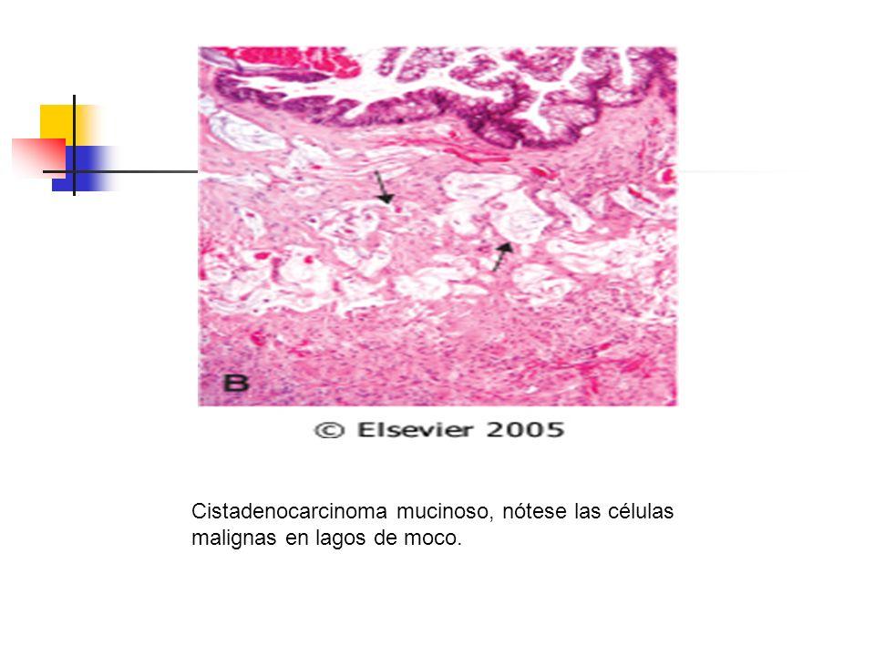 Cistadenocarcinoma mucinoso, nótese las células malignas en lagos de moco.