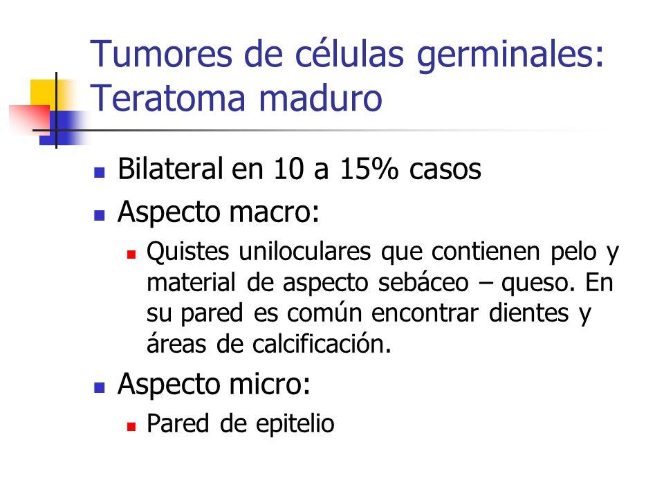 Tumores de células germinales: Teratoma maduro Bilateral en 10 a 15% casos Aspecto macro: Quistes uniloculares que contienen pelo y material de aspect