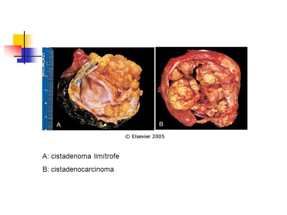 A: cistadenoma limítrofe B: cistadenocarcinoma