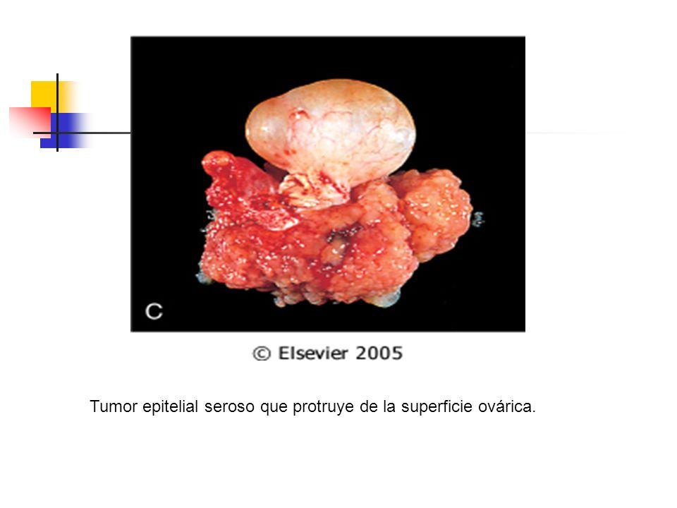 Tumor epitelial seroso que protruye de la superficie ovárica.