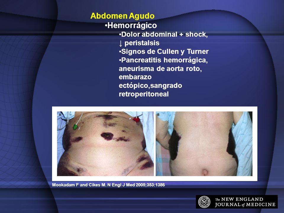 Mookadam F and Cikes M. N Engl J Med 2005;353:1386 Abdomen Agudo Hemorrágico Dolor abdominal + shock, peristalsis Signos de Cullen y Turner Pancreatit