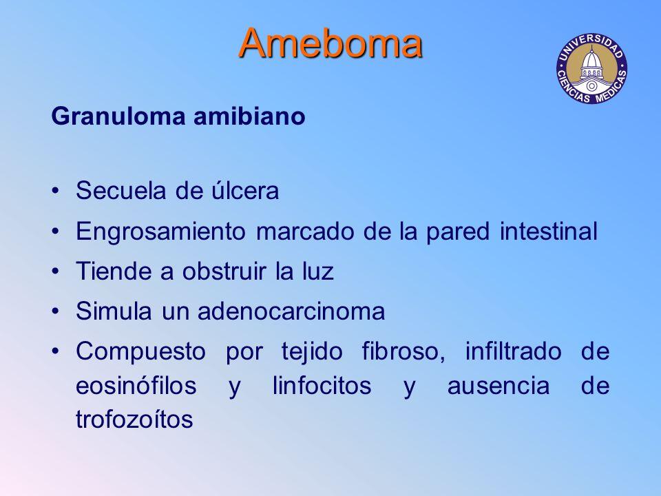 Ameboma Granuloma amibiano Secuela de úlcera Engrosamiento marcado de la pared intestinal Tiende a obstruir la luz Simula un adenocarcinoma Compuesto