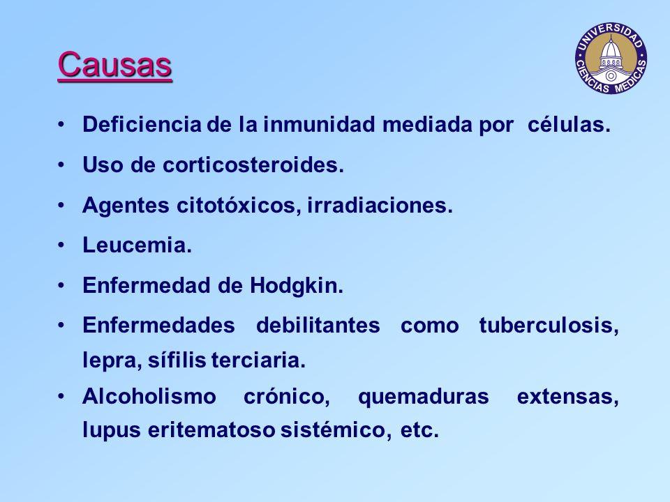 Causas Deficiencia de la inmunidad mediada por células. Uso de corticosteroides. Agentes citotóxicos, irradiaciones. Leucemia. Enfermedad de Hodgkin.