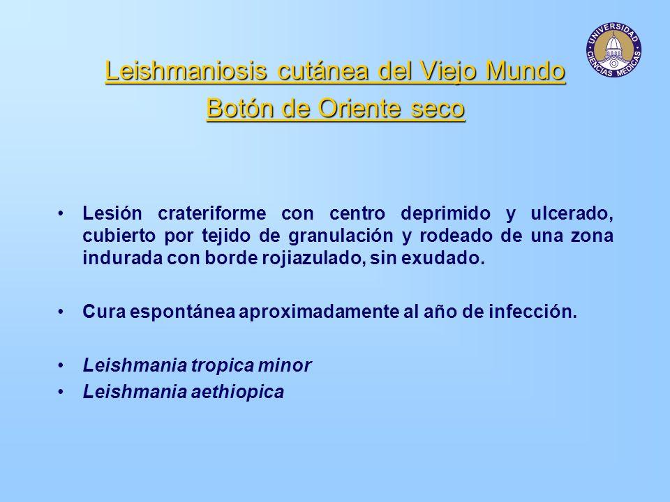 Leishmaniosis cutánea del Viejo Mundo Botón de Oriente seco Lesión crateriforme con centro deprimido y ulcerado, cubierto por tejido de granulación y