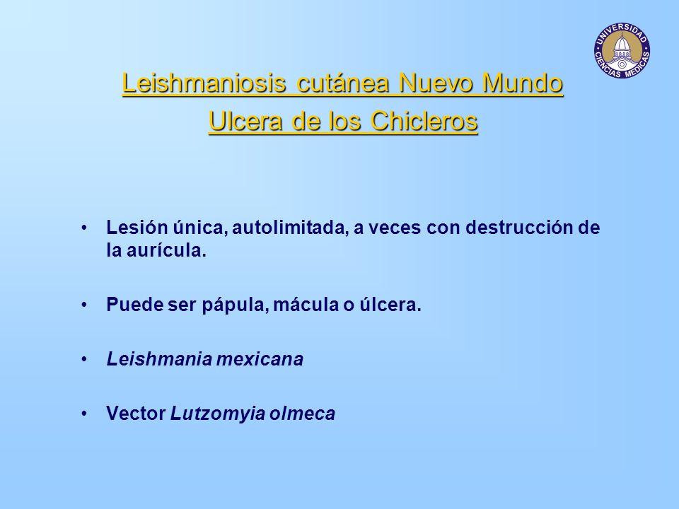 Leishmaniosis cutánea Nuevo Mundo Ulcera de los Chicleros Lesión única, autolimitada, a veces con destrucción de la aurícula. Puede ser pápula, mácula