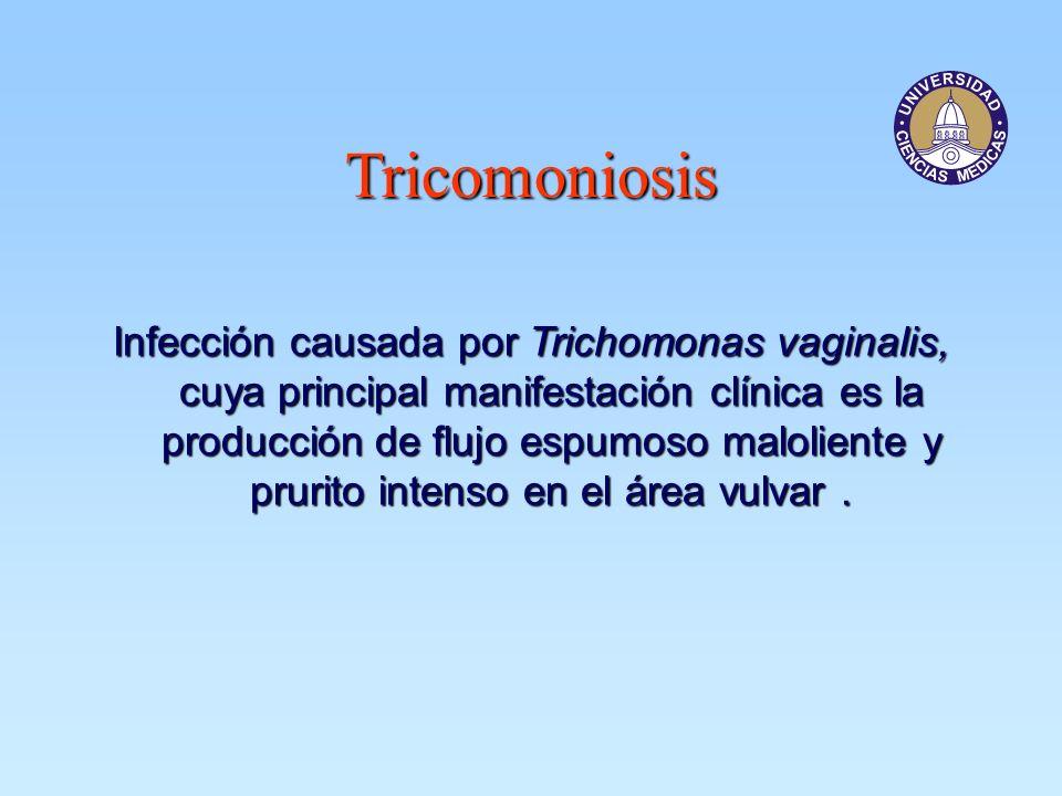 Tricomoniosis Infección causada por Trichomonas vaginalis, cuya principal manifestación clínica es la producción de flujo espumoso maloliente y prurit