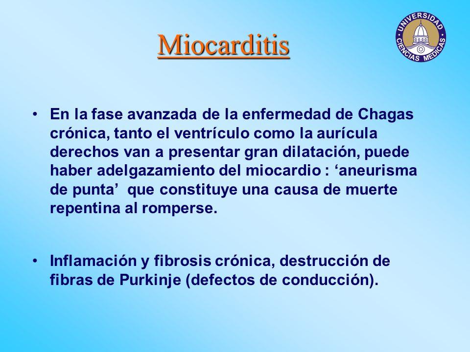 Miocarditis En la fase avanzada de la enfermedad de Chagas crónica, tanto el ventrículo como la aurícula derechos van a presentar gran dilatación, pue
