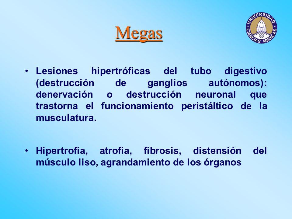 Megas Lesiones hipertróficas del tubo digestivo (destrucción de ganglios autónomos): denervación o destrucción neuronal que trastorna el funcionamient