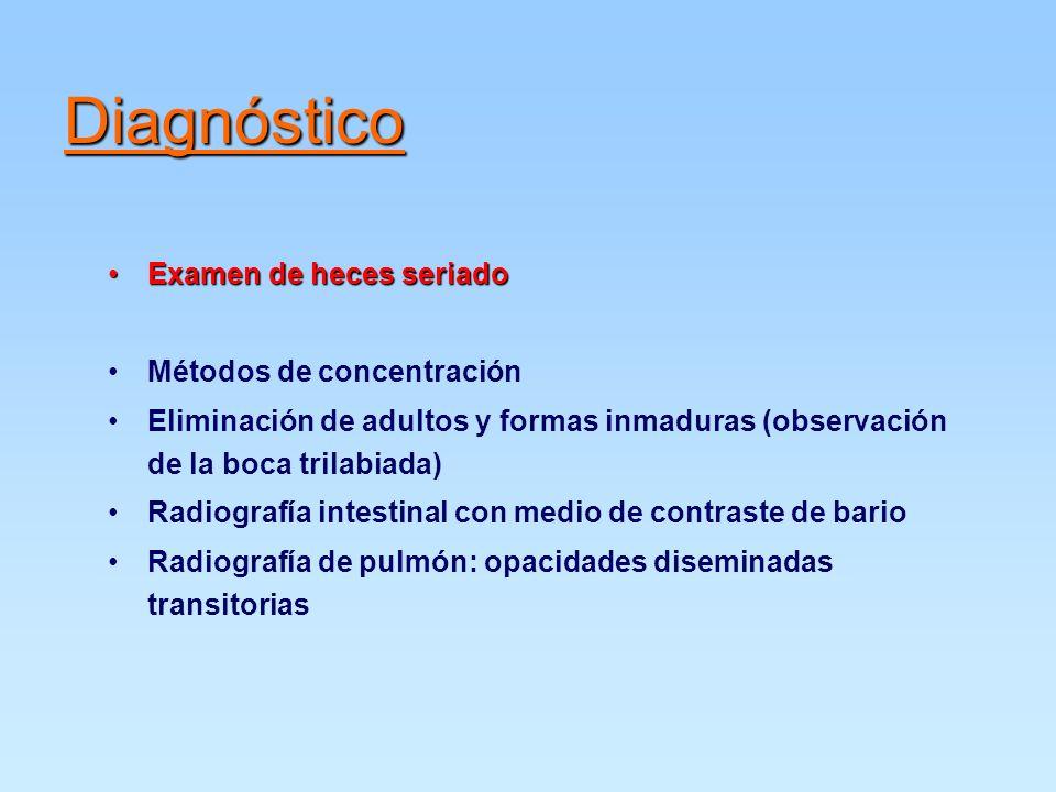 Diagnóstico Examen de heces seriadoExamen de heces seriado Métodos de concentración Eliminación de adultos y formas inmaduras (observación de la boca trilabiada) Radiografía intestinal con medio de contraste de bario Radiografía de pulmón: opacidades diseminadas transitorias