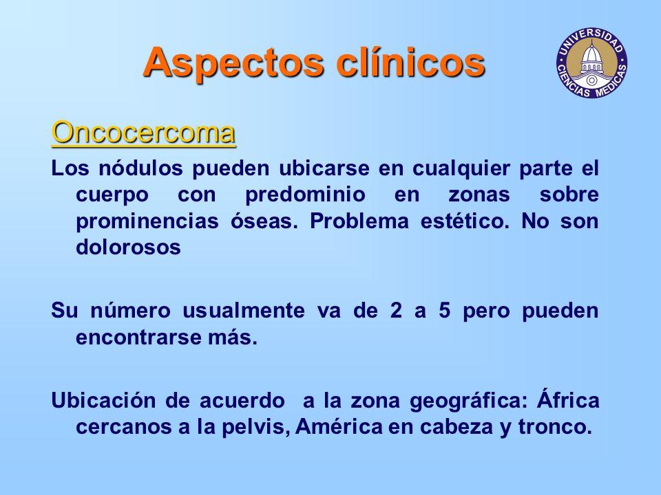 Aspectos clínicos Oncocercoma Los nódulos pueden ubicarse en cualquier parte el cuerpo con predominio en zonas sobre prominencias óseas. Problema esté
