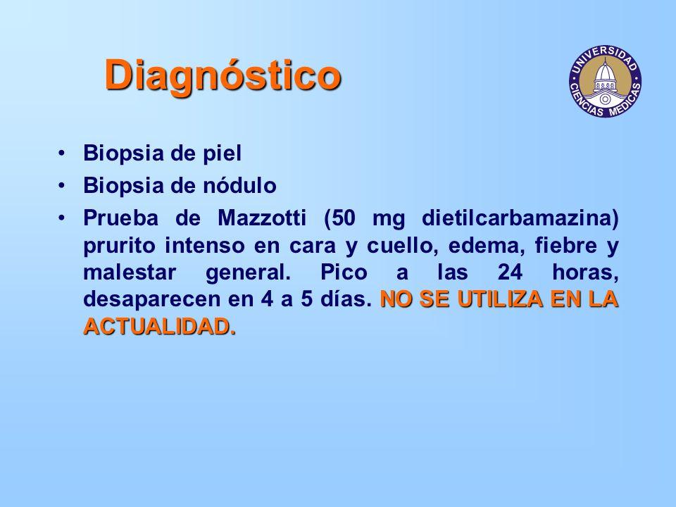 Diagnóstico Biopsia de piel Biopsia de nódulo NO SE UTILIZA EN LA ACTUALIDAD.Prueba de Mazzotti (50 mg dietilcarbamazina) prurito intenso en cara y cu