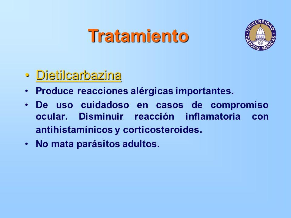 Tratamiento DietilcarbazinaDietilcarbazina Produce reacciones alérgicas importantes. De uso cuidadoso en casos de compromiso ocular. Disminuir reacció