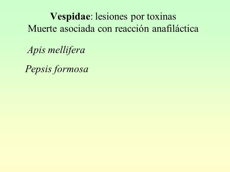 Vespidae: lesiones por toxinas Muerte asociada con reacción anafiláctica Pepsis formosa Apis mellifera