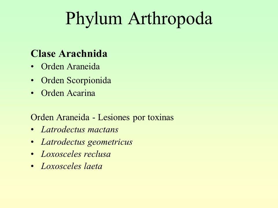 Phylum Arthropoda Clase Arachnida Orden Araneida Orden Scorpionida Orden Acarina Orden Araneida - Lesiones por toxinas Latrodectus mactans Latrodectus geometricus Loxosceles reclusa Loxosceles laeta