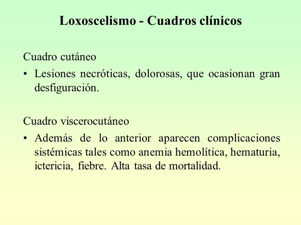 Loxoscelismo - Cuadros clínicos Cuadro cutáneo Lesiones necróticas, dolorosas, que ocasionan gran desfiguración.