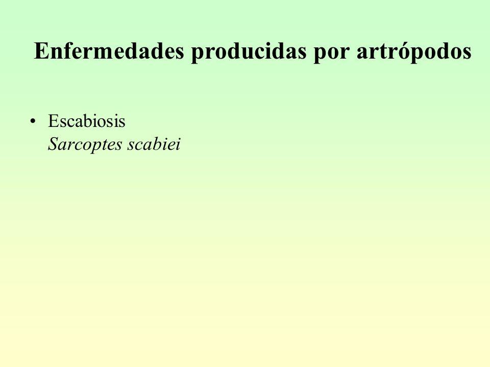 Enfermedades producidas por artrópodos Escabiosis Sarcoptes scabiei