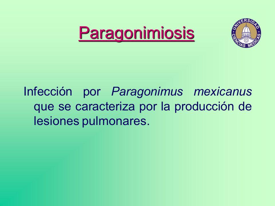 Infección por Paragonimus mexicanus que se caracteriza por la producción de lesiones pulmonares. Paragonimiosis