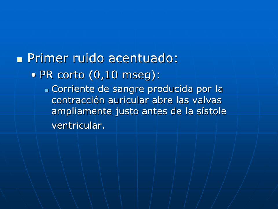 Primer ruido acentuado: Primer ruido acentuado: PR corto (0,10 mseg):PR corto (0,10 mseg): Corriente de sangre producida por la contracción auricular