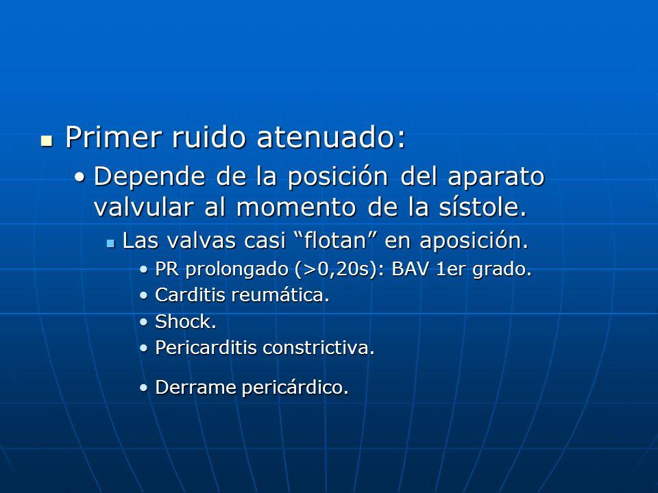 Primer ruido atenuado: Primer ruido atenuado: Depende de la posición del aparato valvular al momento de la sístole.Depende de la posición del aparato