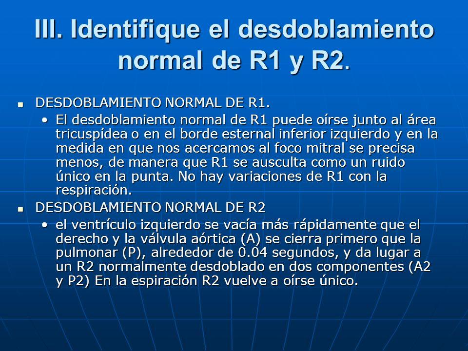 III. Identifique el desdoblamiento normal de R1 y R2. DESDOBLAMIENTO NORMAL DE R1. DESDOBLAMIENTO NORMAL DE R1. El desdoblamiento normal de R1 puede o