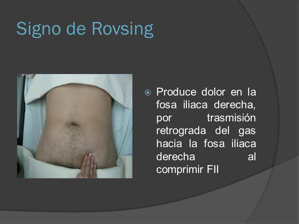 Signo de Rovsing Produce dolor en la fosa iliaca derecha, por trasmisión retrograda del gas hacia la fosa iliaca derecha al comprimir FII