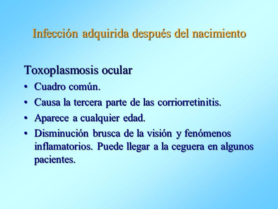 Infección adquirida después del nacimiento Toxoplasmosis ocular Cuadro común.Cuadro común. Causa la tercera parte de las corriorretinitis.Causa la ter