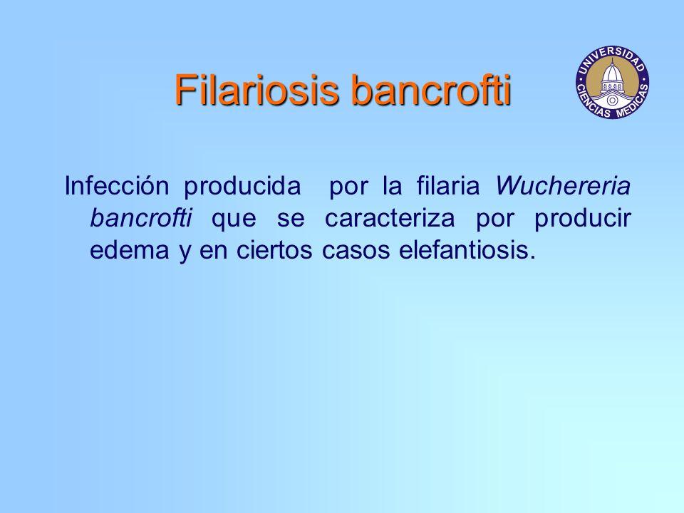 Infección producida por la filaria Wuchereria bancrofti que se caracteriza por producir edema y en ciertos casos elefantiosis.