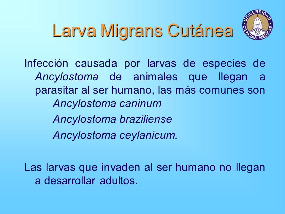 Larva Migrans Cutánea Infección causada por larvas de especies de Ancylostoma de animales que llegan a parasitar al ser humano, las más comunes son An