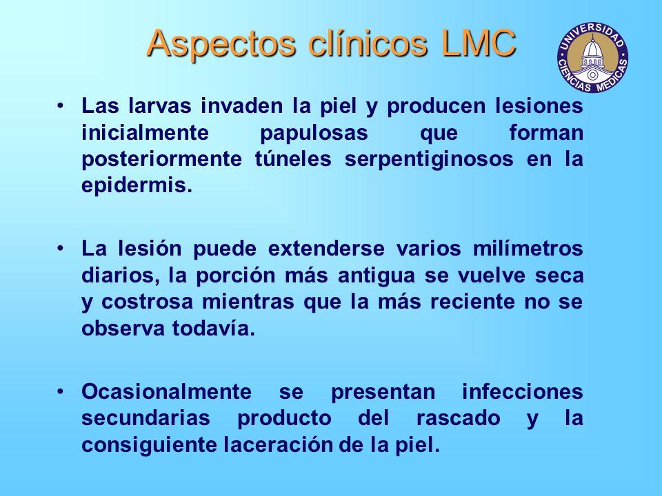 Aspectos clínicos LMC Las larvas invaden la piel y producen lesiones inicialmente papulosas que forman posteriormente túneles serpentiginosos en la ep