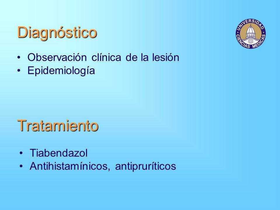 Diagnóstico Observación clínica de la lesión Epidemiología Tiabendazol Antihistamínicos, antipruríticos Tratamiento