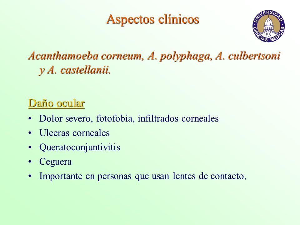 Aspectos clínicos Acanthamoeba corneum, A. polyphaga, A. culbertsoni y A. castellanii. Daño ocular Dolor severo, fotofobia, infiltrados corneales Ulce