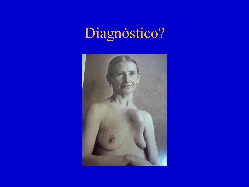 Diagnóstico?