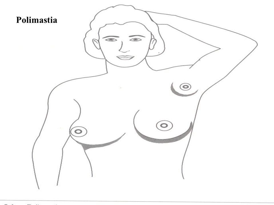carcinoma de mama en un hombre