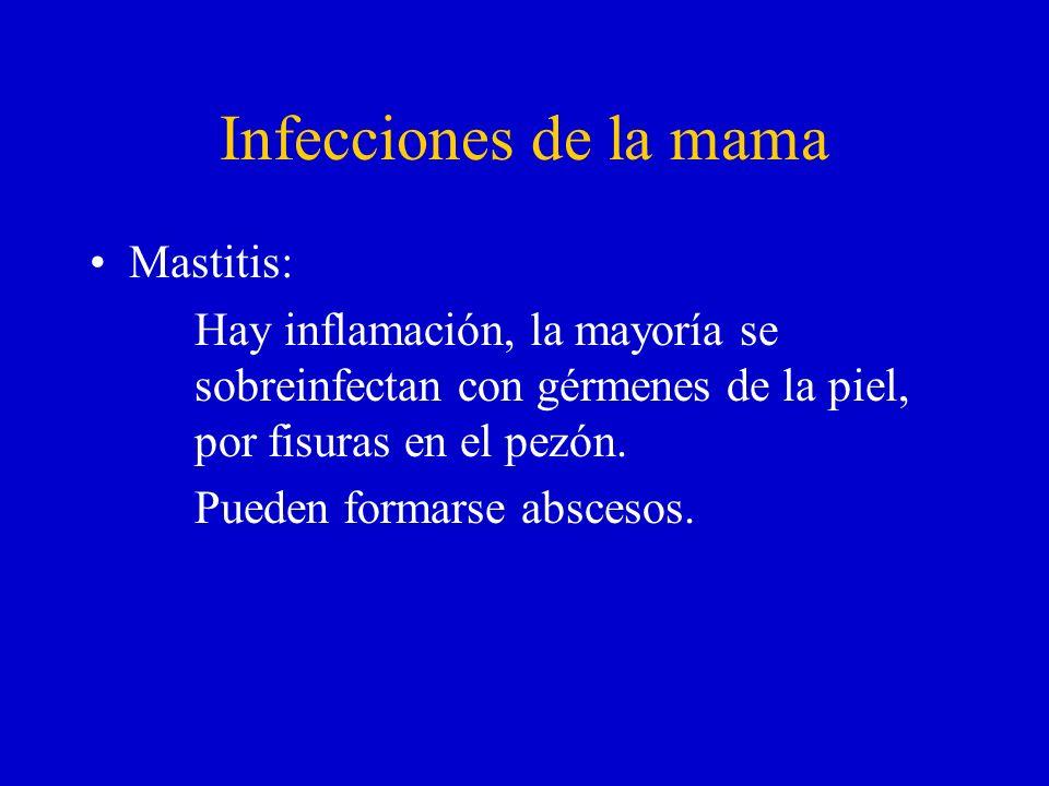 Infecciones de la mama Mastitis: Hay inflamación, la mayoría se sobreinfectan con gérmenes de la piel, por fisuras en el pezón. Pueden formarse absces
