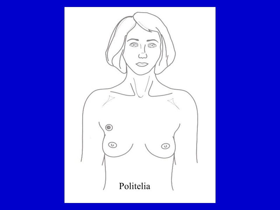 Examen Físico Para describir los hallazgos la mama se ha dividido en cuadrantes: Superior interno Superior externo incluye prolong axilar Inferior interno Inferior externo