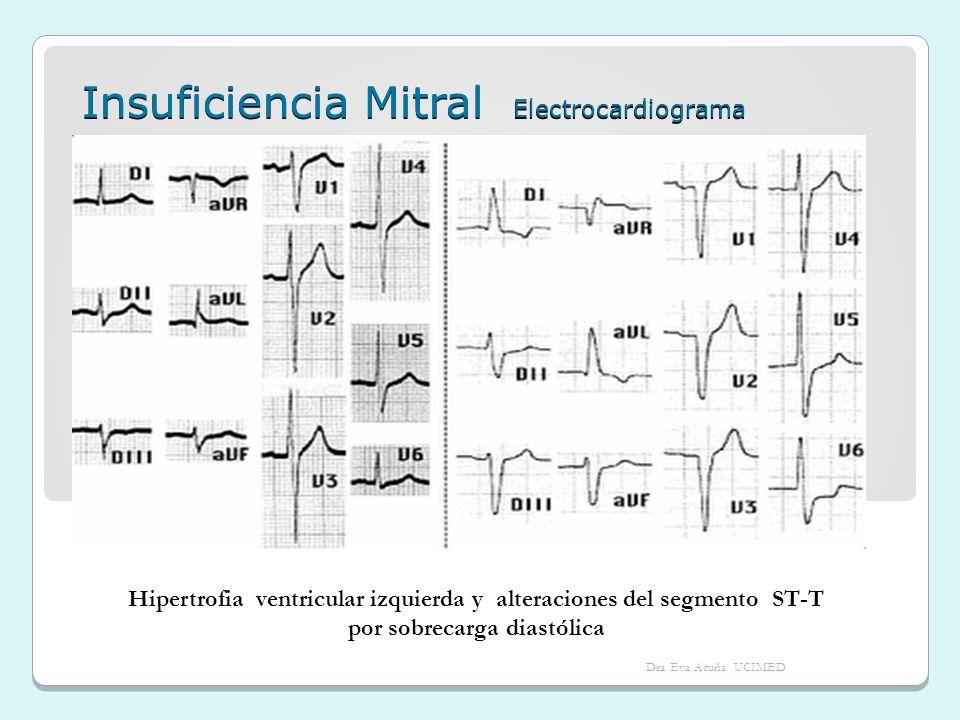 Insuficiencia Mitral Electrocardiograma Hipertrofia ventricular izquierda y alteraciones del segmento ST-T por sobrecarga diastólica Dra Eva Acuña UCI